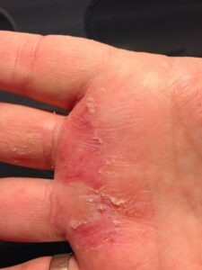 Hand Eczema after one day of using Aloe Vera