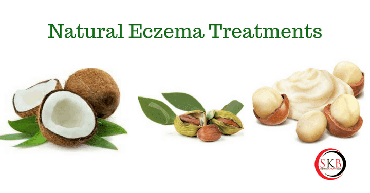 Natural Eczema Treatments by Sisters Know Best